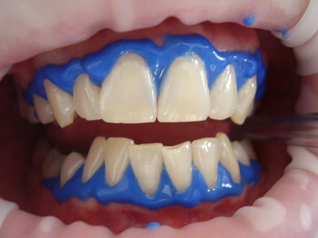 bělení zubů
